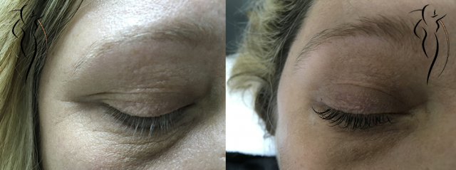 Lash Extensions - Before and After
